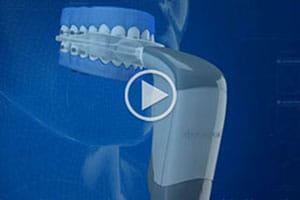 Acceledent Video Greater Buffalo Orthodontics Buffalo NY